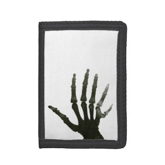 Skeleton Xray Six Fingered Hand Bones Tri-fold Wallets