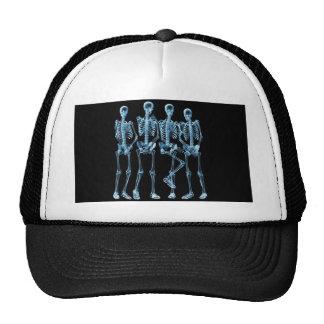 Skeleton Xray Trucker Hat