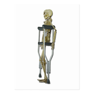 SkeletonOnCrutches100711 Postcard