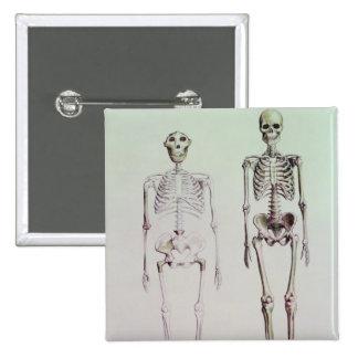 Skeletons of Australopithecus Boisei Pinback Button