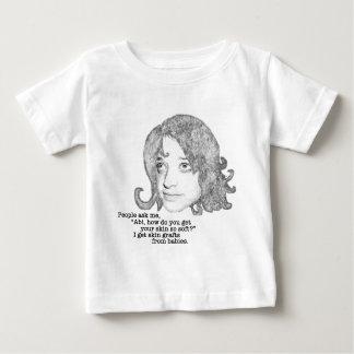 Skin Grafts infant Baby T-Shirt