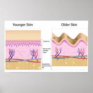 Skin problems print Poster