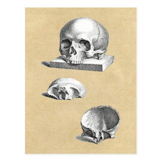 Skull and Bones Orthopedic Drawing Postcard