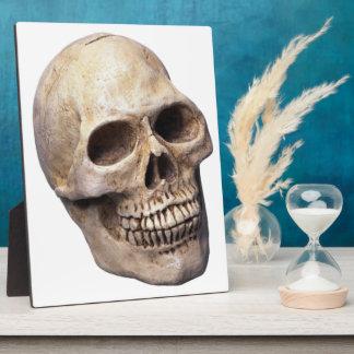 Skull bone Plaque (3) sizes