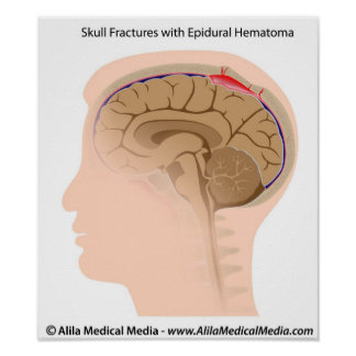 Skull Fractures with Epidural Hematoma Poster