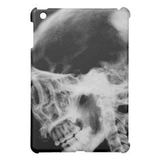 Skull X-Ray iPad Case (Black & White)