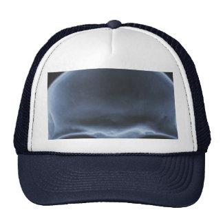 Skull Xray Hats