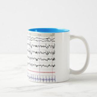 Sleep EEG Mug - Stage 2 Sleep
