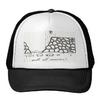 Small Cell Carcinoma hat