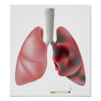 Smoking and lung cancer Poster