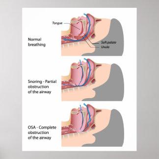 Snoring and sleep apnea Poster