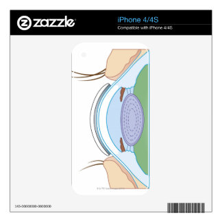Soft Contact Lens iPhone 4 Skins