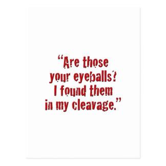 """¿""""Son esos sus globos del ojo? Postales"""