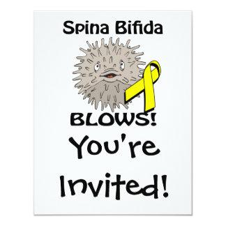 Spina Bifida Blows Awareness Design Personalized Invitation
