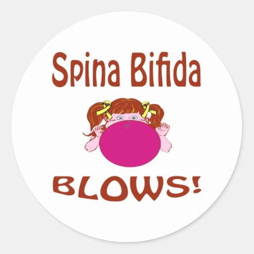 Spina Bifida Classic Round Sticker