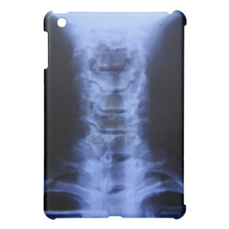 Spinal Alignment Cover For The iPad Mini