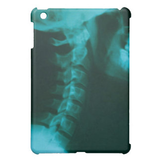 Spinal Alignment iPad Mini Covers