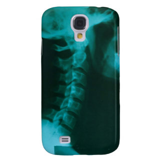 Spinal Alignment Samsung Galaxy S4 Case