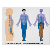 Spinal cord injury basis, medical drawing. poster