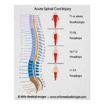 Spinal cord injury levels, labeled diagram. poster