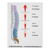 Spinal cord injury levels, labeled drawing. poster