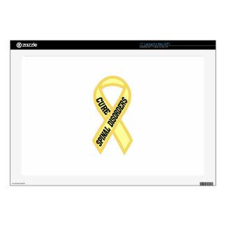 Spinal Disorder Skin For Laptop