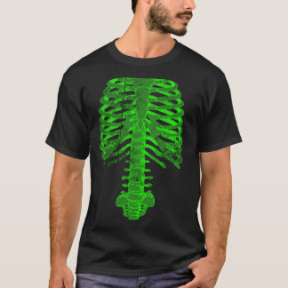 Spinal Tap x-ray T-Shirt