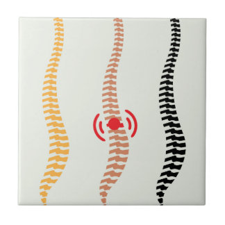 Spine Tile