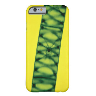 Spirogyra Green Algae Barely There iPhone 6 Case