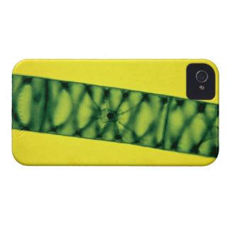 Spirogyra Green Algae iPhone 4 Case