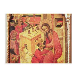 St. Luke Operating on a Man's Head, c.1400-30 Canvas Print