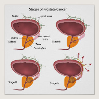 Stages of prostate cancer Poster