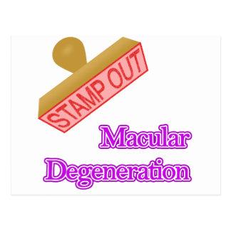 Stamp Out Macular Degeneration Postcard
