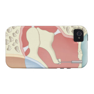 Stapedotomy Surgery iPhone 4 Covers