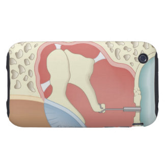 Stapedotomy Surgery iPhone 3 Tough Covers