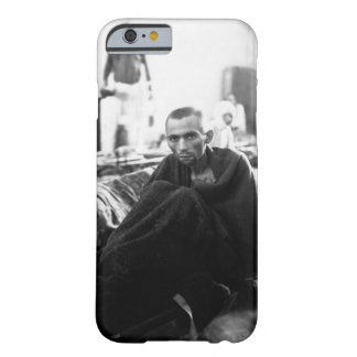 Starving inmate of Camp Gusen_War Image Barely There iPhone 6 Case
