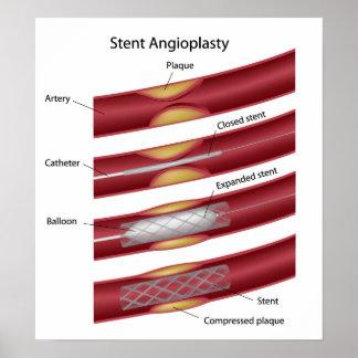 Stent angioplasty Poster