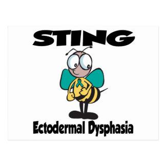 STING Ectodermal Dysphasia Postcard