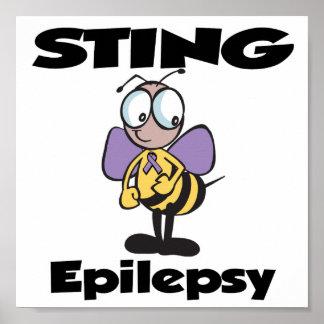 STING Epilepsy Poster