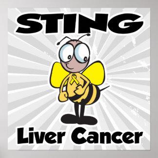 STING Liver Cancer Poster