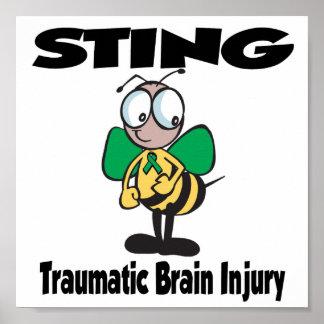 STING Traumatic Brain Injury Poster