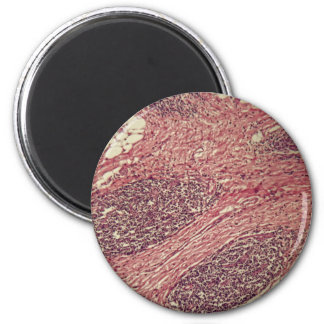 Stomach cancer cells under the microscope. 2 inch round magnet