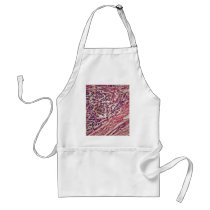 Stomach cancer cells under the microscope. adult apron