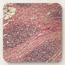 Stomach cancer cells under the microscope. beverage coaster