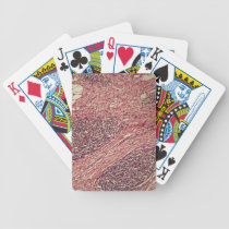 Stomach cancer cells under the microscope. bicycle playing cards