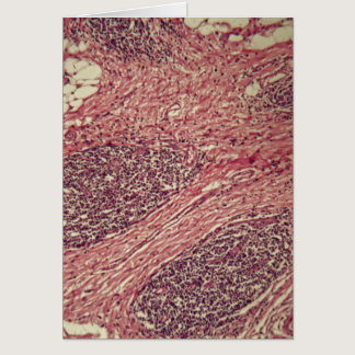 Stomach cancer cells under the microscope. card