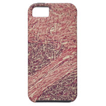 Stomach cancer cells under the microscope. iPhone SE/5/5s case