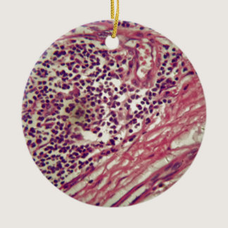 Stomach cancer cells under the microscope. ceramic ornament