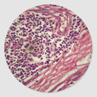 Stomach cancer cells under the microscope. classic round sticker