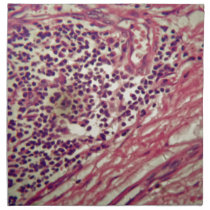 Stomach cancer cells under the microscope. cloth napkin